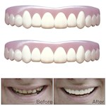 (Set/2) Natural Imako Cosmetic Custom Teeth (Small) - Smile With Confidence (2)
